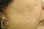 Patient After Profractional Treatment